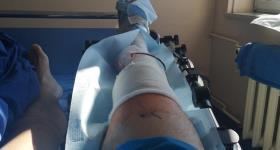 Szymon Nowak przeszedł operację kolana.